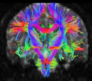 14 rencontre de neurologie